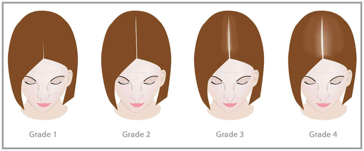 Progression of hair loss in women