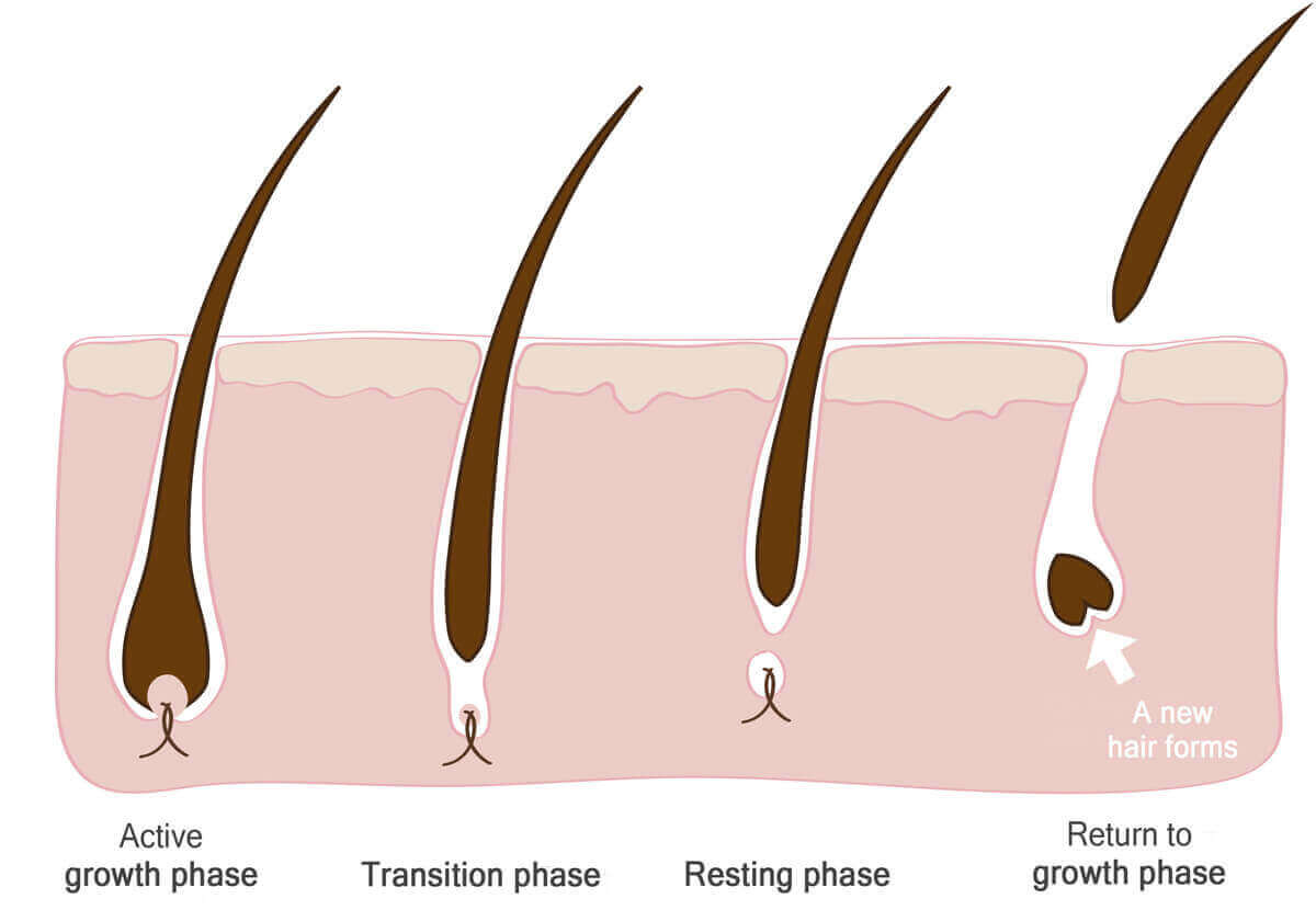 Causes for hair falling out from roots